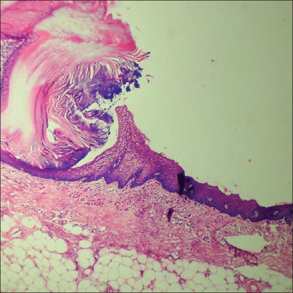 lichen sclerosus perianal