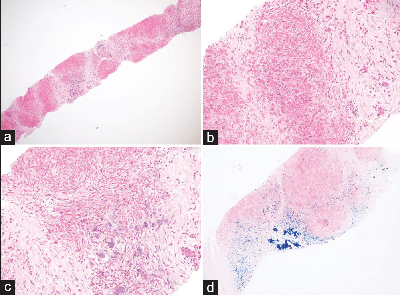 Figure 2: (a) Splenic core biopsy showing multinodular appearance (H and E, ×4); (b) high power view of the nodules showing slit-like vascular spaces and many erythrocytes surrounded by fibrosis (hematoxylin and eosin [H and E, ×20]); (c) The intervening stroma showing inflammatory cells, calcifications, and hemosiderin-laden macrophages (H and E, ×20); (d) hemosiderin deposition highlighted by special stain for iron (Pearls Prussian blue, ×10)