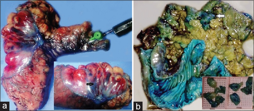Figure 1: (a) Left: Resected colorectal specimen with the main artery identified, cannulated and injected with 10-30 ml of methylene blue dye (grey arrow). Inset depicting the highlighted surface vessels visible through the intact mesorectal fascia (black arrow). (b) Right: Highlighted lymph nodes postfixation as blue circumscribed areas (arrows). Inset depicting dissected lymph nodes stained by methylene blue