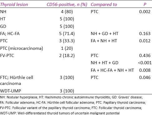 Table 2: Expression of CD56 in the studied thyroid lesions