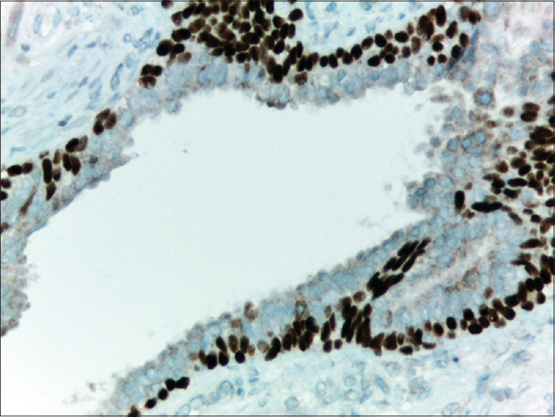 Figure 4: Eosinophilic metaplasia in the prostate: The cells shows weakly apical false-positive P504S immune staining and they are surrounded by P63 positive basal cells (combined P504S/P63 immunostain, ×400)