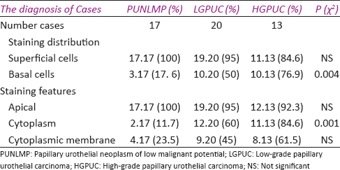 Table 2: Micropapillary urothelial carcinoma main staining distribution and staining features