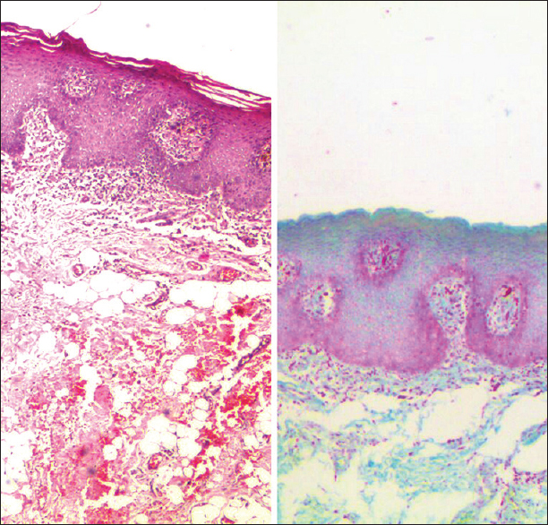 Figure 3: A comparison of severely dysplastic epithelium, seen under ×40 (left - H and E, right - Cajal's trichrome stain)