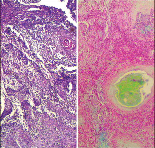 Figure 5: A comparison of frank squamous cell carcinoma, seen under ×40 (left - H and E, right - Cajal's trichrome stain)