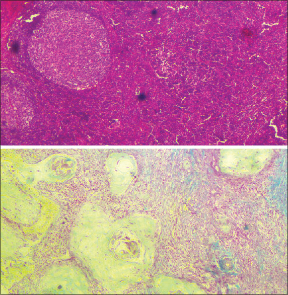 Figure 7: A comparison of invasive squamous cell carcinoma in the lymph node, seen under ×40 (top - H and E, bottom - Cajal's trichrome stain)