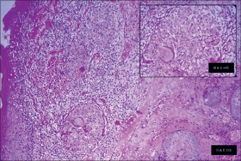 Figure 3: Severe submucosal chronic inflammatory cell infiltrate. Deeper tissue showing noncaseating granulomas with epithelioid cells, giant cells, and lymphocytes