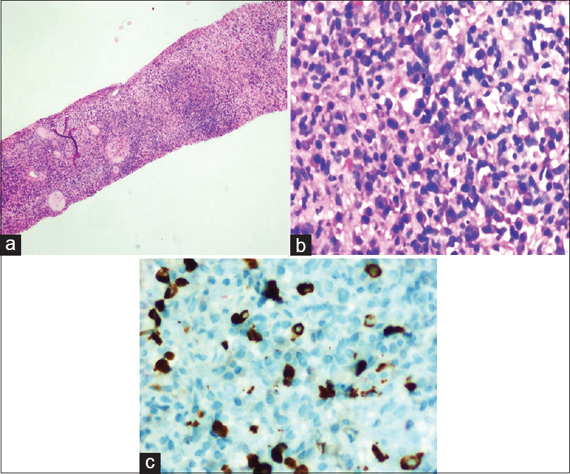 Figure 1: (a) Low power view of tubulointerstitial nephritis with dense lymphoplasmacytic infiltrate (H and E, ×100). (b) Plasma cell-rich interstitial infiltrate associated with extensive fibrosis (H and E, ×400). (c) Immunostaining for immunoglobulin G4 shows >25 immunoglobulin G4-positive plasma cells in single high-power field (IHC, ×400)