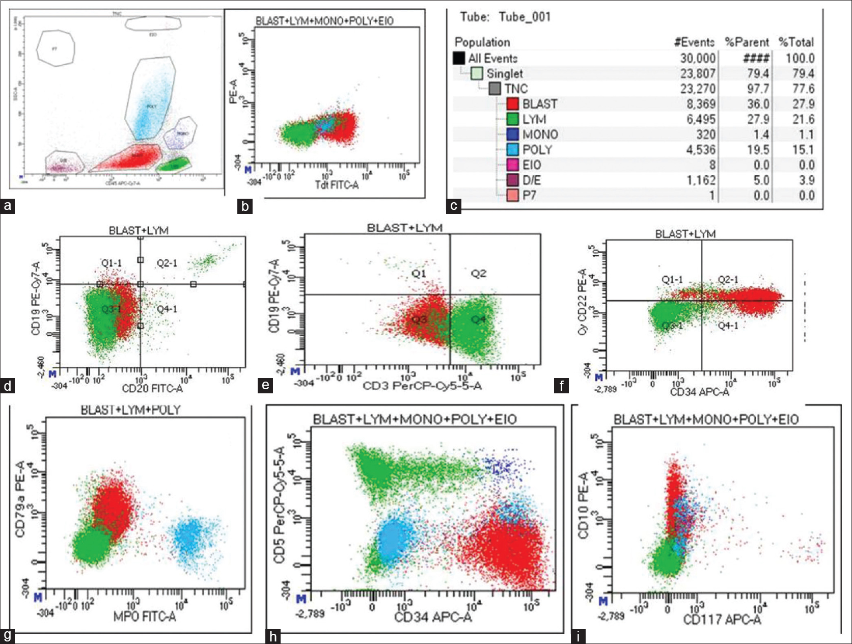 Figure 1: Flow cytometric immunophenotyping graphs. Blasts are shown in red, lymphocyte in green, and maturing myeloid cells in blue. (a) 36% blasts, (b) TdT positivity, (c) statistics, (d and e) CD19 negativity, (f) CD34-positive leukoblasts with dim CD22 positivity, (g and h) CD79a positivity with MPO and CD5 negativity, and (i) heterogenous CD10 positivity