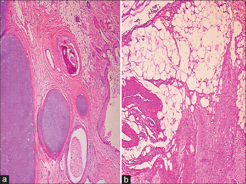 Figure 3: (a) Ovarian tissue shows keratin, stratified squamous epithelium, hair follicle, columnar epithelium, fat, and cartilage. (b) Showing nodules of mature glial tissue in the omentum