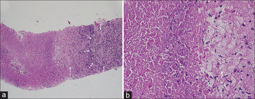 Figure 1: Biopsy from the adrenal gland lesion showing extensive caseation (arrows, a [H and E, ×10] and b [H and E, ×20]) with necrotizing granulomatous inflammation (dashed arrows A [H and E, ×10]) with multinucleated giant cells