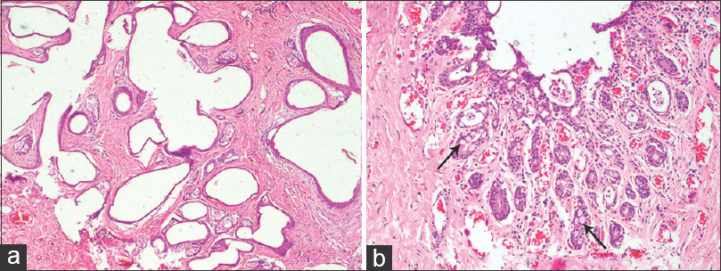 Chondroid syringoma with extensive cystic change and focal