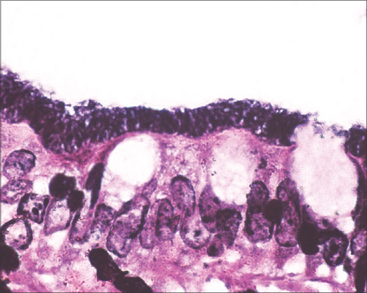 Figure 3: Filamentous spiral bacilli embedded on luminal surface. (Silver methenamine stain ×1000)