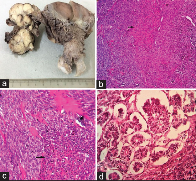 Figure 1: (a) Gross photograph showing whorled appearance of ovarian mass; (b) composite photomicrograph of tumor showing fibroma with luteinized thecal component (arrow) and minor sex cord element cells (H and E, ×100); (c) fibroma with distinct luteinized thecal cell island (arrow) (H and E, ×400); (d) foci of minor sex cord element cells showing well-formed Sertoli cell tubules (H and E, ×400)