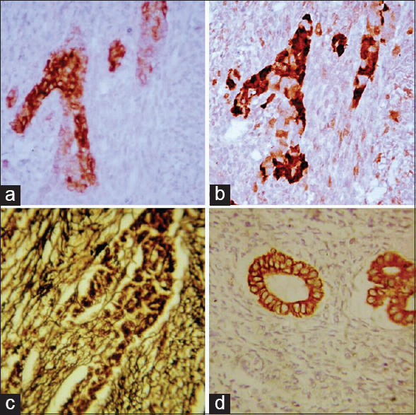 Figure 2: (a) Immunohistochemistry, inhibin cytoplasmic staining in Sertoli cell component (×400); (b) immunohistochemistry, calretinin-intense cytoplasmic staining in Sertoli cell components; weak and focal staining in fibromatous cells (×400); (c) reticulin positivity, encircling individual fibromatous, and Sertoli cell component (×400); (d) immunohistochemistry, cytokeratin focal cytoplasmic staining in Sertoli cell tubules (×400)