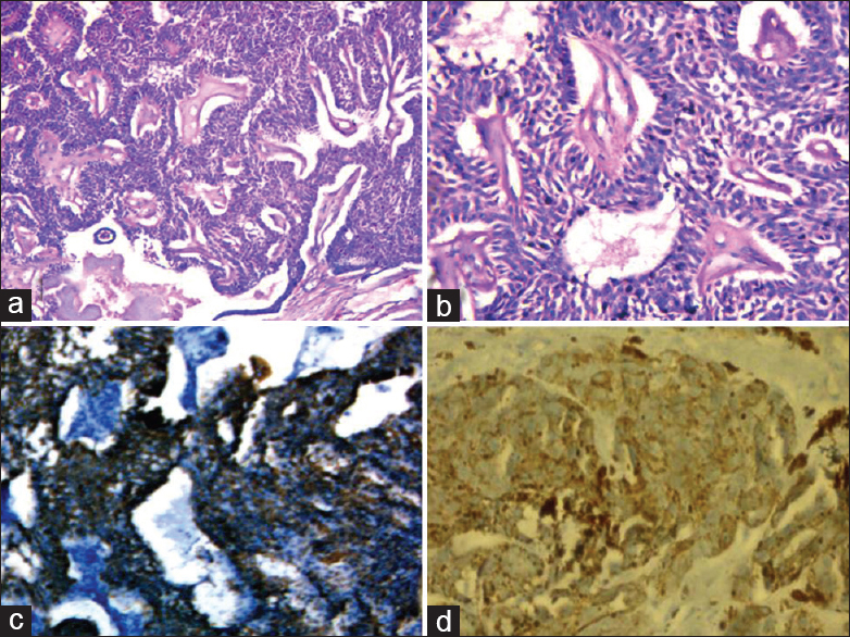 Figure 2: Photomicrograph of hidradenoma papilliferum. (a) Cystic neoplasm with complex glandular pattern and papillary folds (H and E, ×40), (b) the papillae are lined by double layer of epithelium and their lumina shows active decapitation secretion (H and E, ×400), (c) the tumor shows strong positivity for gross cystic disease fluid protein (immunoperoxidase, ×400), (d) the tumor cells show epithelial membrane antigen positivity ((immunoperoxidase, ×400)