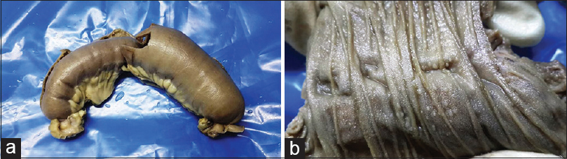 Figure 1: (a) Segment of small bowel with stricture and dilation. (b) Cut surface showing small white miliary such as tubercles on mucosal surface
