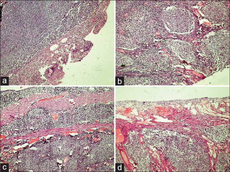 Figure 2: Sections from intestine (H and E, ×100) (a) atypical lymphoid infiltrate in lamina propria with mucosal ulceration, (b) nodular architecture, (c) involvement of muscularis propria and (d) Transmural involvement extending up to the serosa