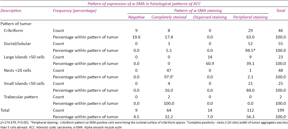 Table 2: Pattern of expression of alpha smooth muscle actin in different histological patterns of adenoid cystic carcinoma