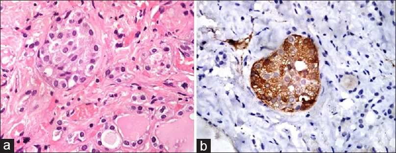 Figure 1: Nodular neoplastic C-cell hyperplasia: (a) C-cells filling the follicular lumen and displaying slightly larger nuclei with granular cytoplasm, as compared to adjacent follicular cells (H and E, ×400); (b) calcitonin (immunostain, ×400)