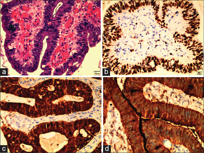Figure 1: H and E staining and immunohistochemical levels of Ki-67, P16, and carcinoembryonic antigen in villoglandular adenocarcinoma tissues. (a) H and E staining of villoglandular adenocarcinoma tissues. (b) Ki-67 was highly expressed in villoglandular adenocarcinoma tissues. (c) P16 was highly expressed in villoglandular adenocarcinoma tissues. (d) Carcinoembryonic antigen was highly expressed in villoglandular adenocarcinoma tissues
