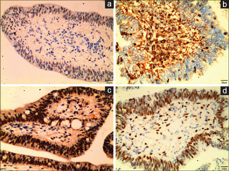 Figure 2: The expression of progesterone receptor, P53, vimentin, and estrogen receptor was detected in villoglandular adenocarcinoma tissues by immunohistochemistry. (a) Progesterone receptor was hardly detected in villoglandular adenocarcinoma tissues. (b) Vimentin was highly expressed in villoglandular adenocarcinoma tissues. (c) P53 was highly expressed in villoglandular adenocarcinoma tissues. (d) Estrogen receptor was highly expressed in villoglandular adenocarcinoma tissues