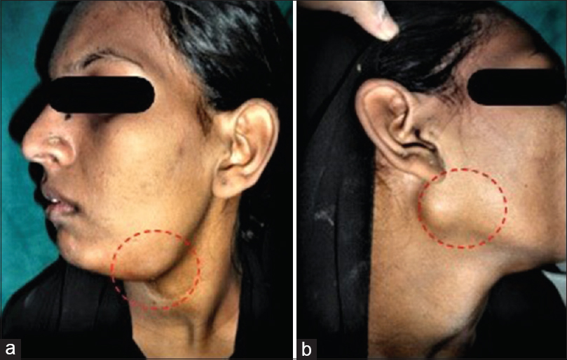Figure 1: Diffuse bilateral swellings in submandibular region (a) measuring 4 cm × 3 cm on the left side (b) measuring 2 cm × 1 cm on the right side