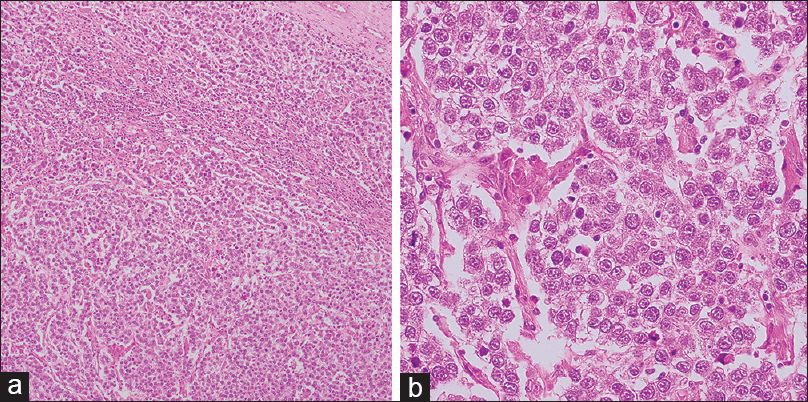 Figure 2: Nests and trabecules of uniformed polygonal tumor cells with eosinophilic to clear cytoplasm. The tumor cells were separated by thin fibrous septa infiltrated by lymphocytes. (a) H and E, ×100 and (b) H and E, ×400