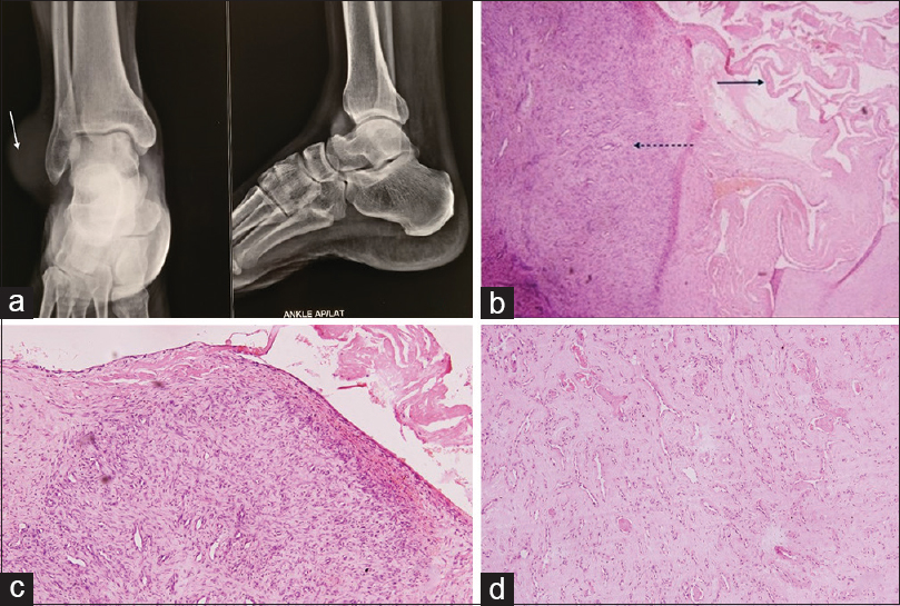 Figure 1: (a) X-ray showing no bony deformity (arrow shows soft-tissue swelling); (b) Case 1: Photomicrograph showing hemangioma with synovium from ankle joint (dotted arrow – hemangioma, solid arrow – synovium from the ankle joint); (c) Case 2: Photomicrograph showing thin-walled capillaries with synovium from the wrist joint; (d) Proliferating thin-walled capillary channels in high power (×40)