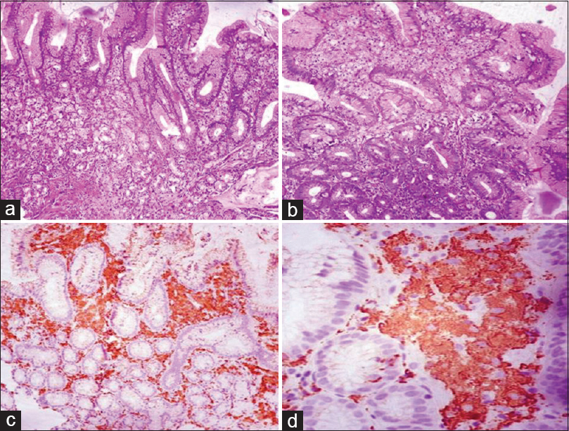 Figure 1: (a and b) Expansion of gastric lamina propria by foamy clear cells (H and E, ×10); (c) immunohistochemistry for CD68 showing positivity in these cells in lamina propria (IHC, ×10); (d) cells showing cytoplasmic positivity for CD68 (IHC, ×40)