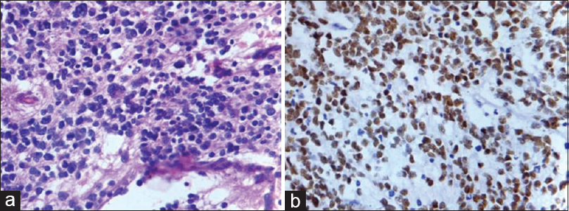 Figure 1: (a) Hematoxylin and eosin stain (400×), and (b) immunohistochemical staining for GATA3 in neuroblastoma case used as positive control