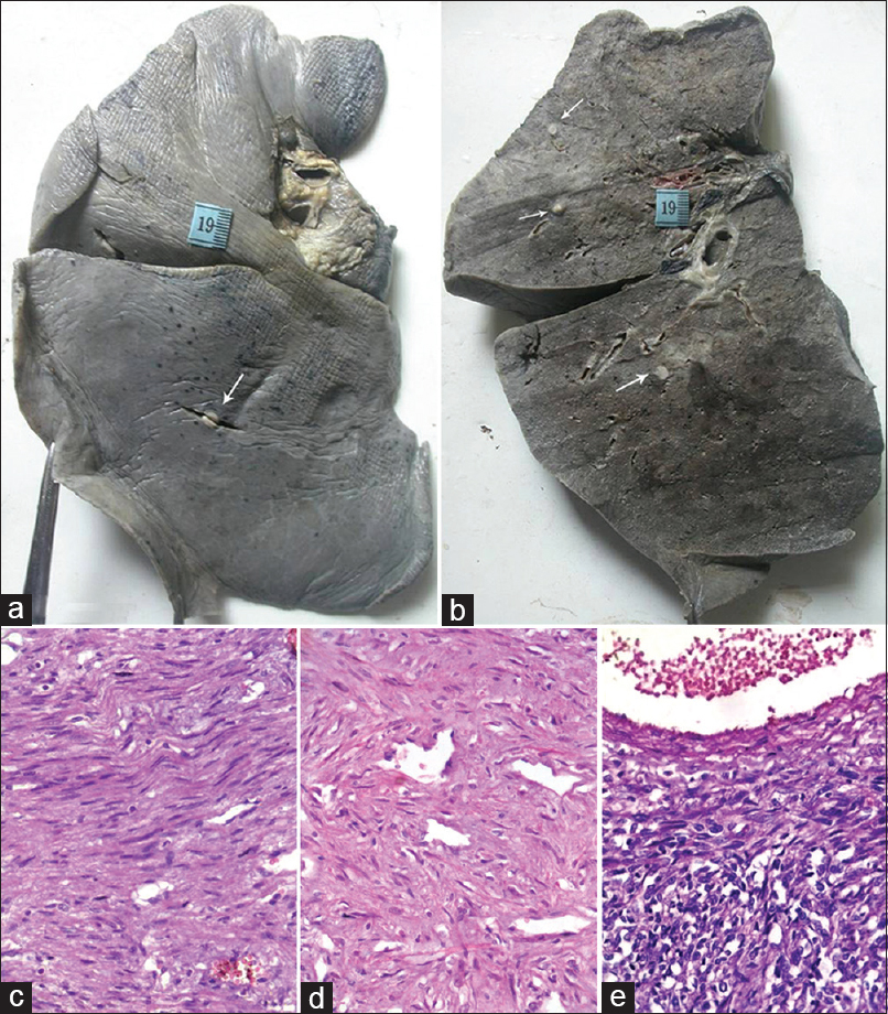 Figure 1: (a) The external and (b) the cut surface of the left lung shows well spaced out sub-pleural and intra-parenchymal (arrows) well-circumscribed grey white slightly glistening nodules, respectively; (c) Interlacing bundles of benign smooth muscle cells; (d) Foci of hyalinization observed in few nodules; (e) Hypercellularity emanating from the periphery of a vein (H and E ×400)