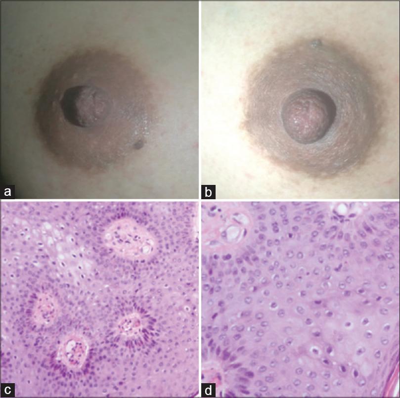 condyloma acuminata in pregnancy)