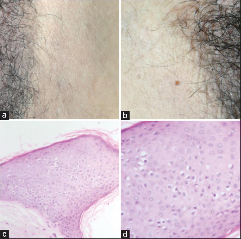 condyloma acuminata of vulva during pregnancy