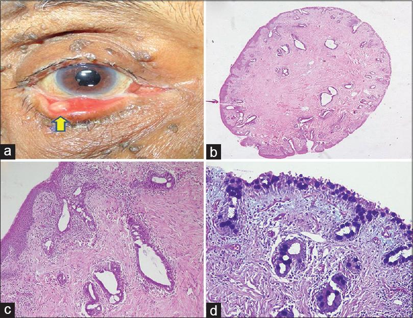 Inverted mucoepidermoid papilloma of conjunctiva: A rare