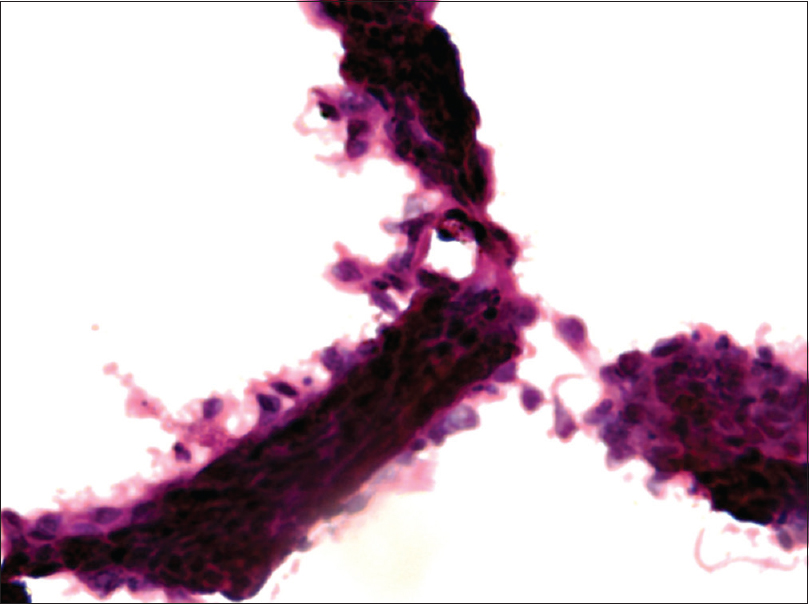 Figure 4: FNAC LBC Pap stain—Papillary RCC showing a papilla with cells in tight overlapping cluster (100×)