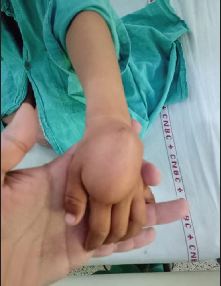 Figure 1: Clinical picture of swelling over dorsum of hand