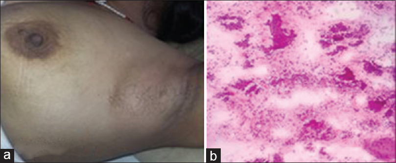 Figure 2: (a) Axillary swelling with left intrareolar polythelia. (b) Cytological findings of fibroadenoma in bilateral axillary ectopic breast tissue on H and E stained smears showing clusters of ductal epithelial cells admixed with myoepithelial cells along with stromal fragments and bare bipolar nuclei (10×).