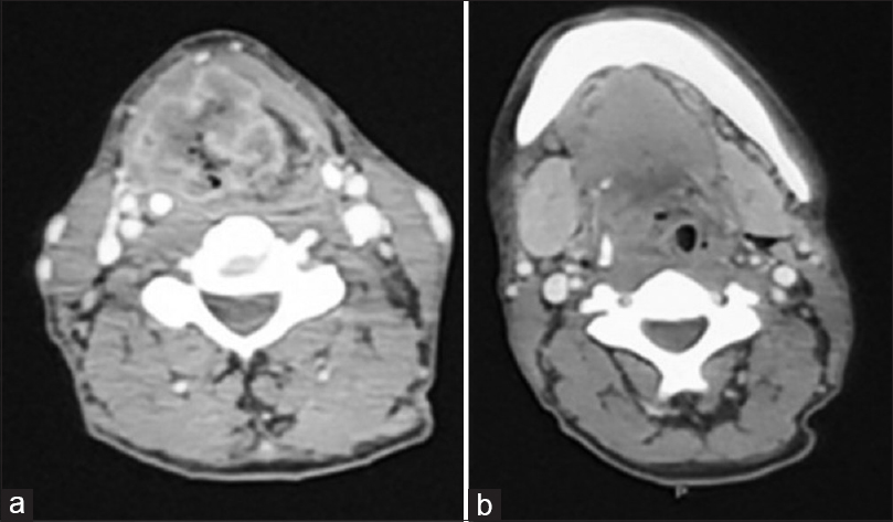 Figure 1: Contrast.enhanced computed tomography neck showing (a) mass lesion in larynx (b) mass in the larynx, submandibular gland, and level Ib lymph node