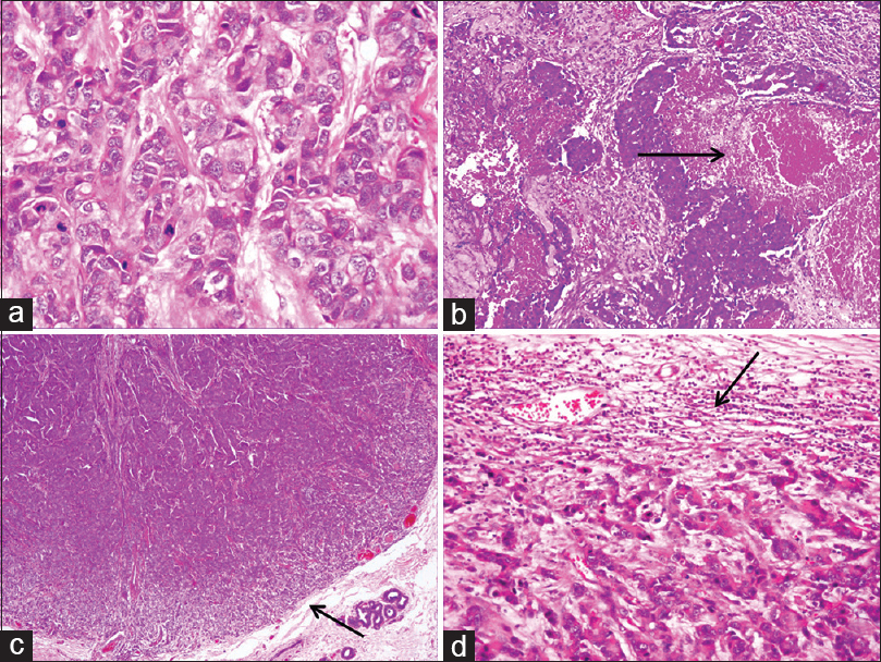 Figure 2:  Histopathological features predictive of triple-negative breast carcinoma: (a) Nottingham grade-3 tumors with high nuclear and architectural grades and increased mitoses (Light microscope—Hematoxylin and eosin 400×), (b) Moderate to extensive tumor necrosis (Light microscope—Hematoxylin and eosin 100×), (c) Pushing tumor margins (Light microscope–Hematoxylin and eosin 100×), (d) Lymphoid infiltrate at tumor margin (Light microscope–Hematoxylin and eosin 100×)