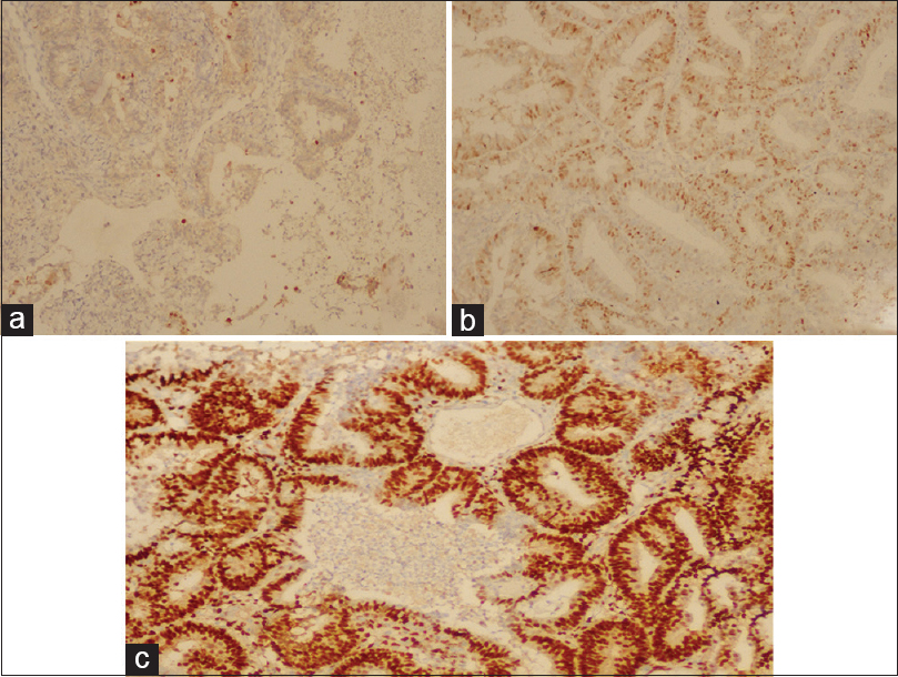 Figure 1: (a) Cyclin D1 expression in hyperplasia without atypia (×20). (b) Cyclin D1 expression in endometrial intraepithelial neoplasia (×40). (c) Cyclin D1 expression pattern in endometrial carcinoma: A strong positivity immunohistochemical staining (×40)