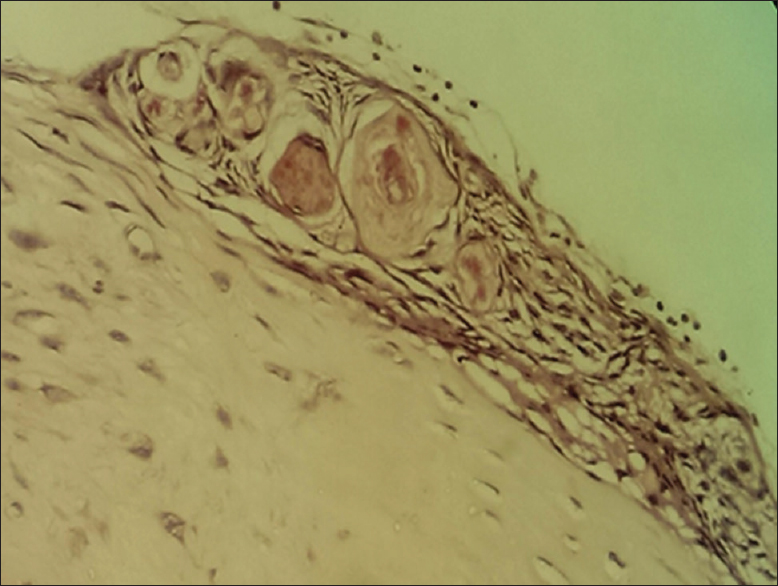 Figure 5: Photomicrograph showing Islands of meningothelial cells in whorling pattern with psammoma bodies at periphery of lesion